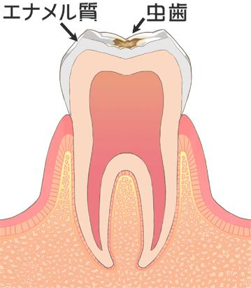 エナメル質の虫歯(C1)エナメル質、虫歯