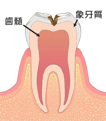 象牙質の虫歯(C2)、骨髄、象牙質
