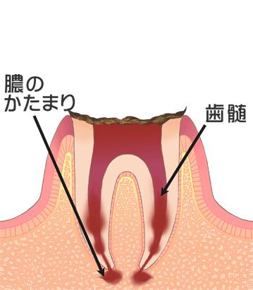 末期の虫歯(C4)膿の塊、歯髄
