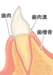 歯を失う一番の病気です、歯肉、歯肉溝、歯槽骨