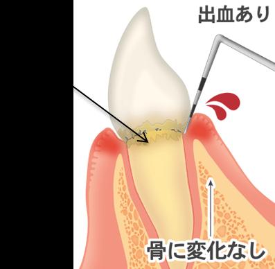 歯を失う一番の病気です、歯石、出血あり、骨に変化なし
