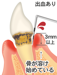 歯を失う一番の病気です、出血あり、3mm以上骨が溶け始めている