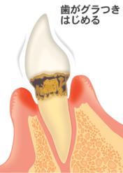 歯を失う一番の病気です、歯がぐらつき始める